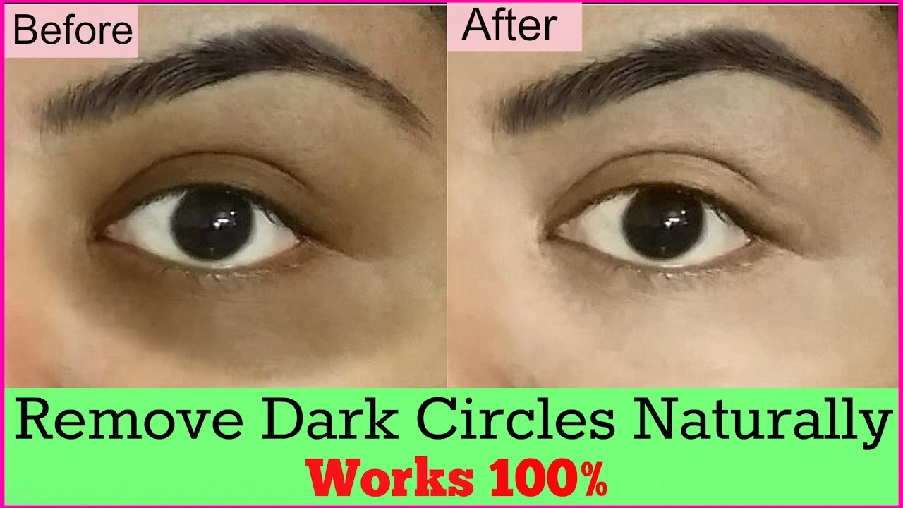 Watch How to get rid of dark circles with milk video