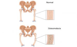 Osteomalacia_causes and symptoms - NAMAT blog